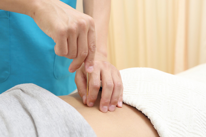 当院の妊娠中のはり灸施術